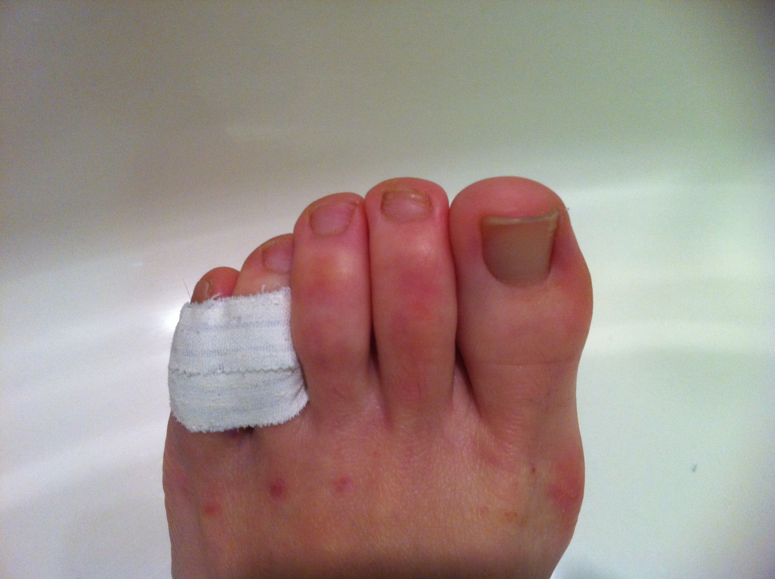 How to Buddy Tape an Injured Toe